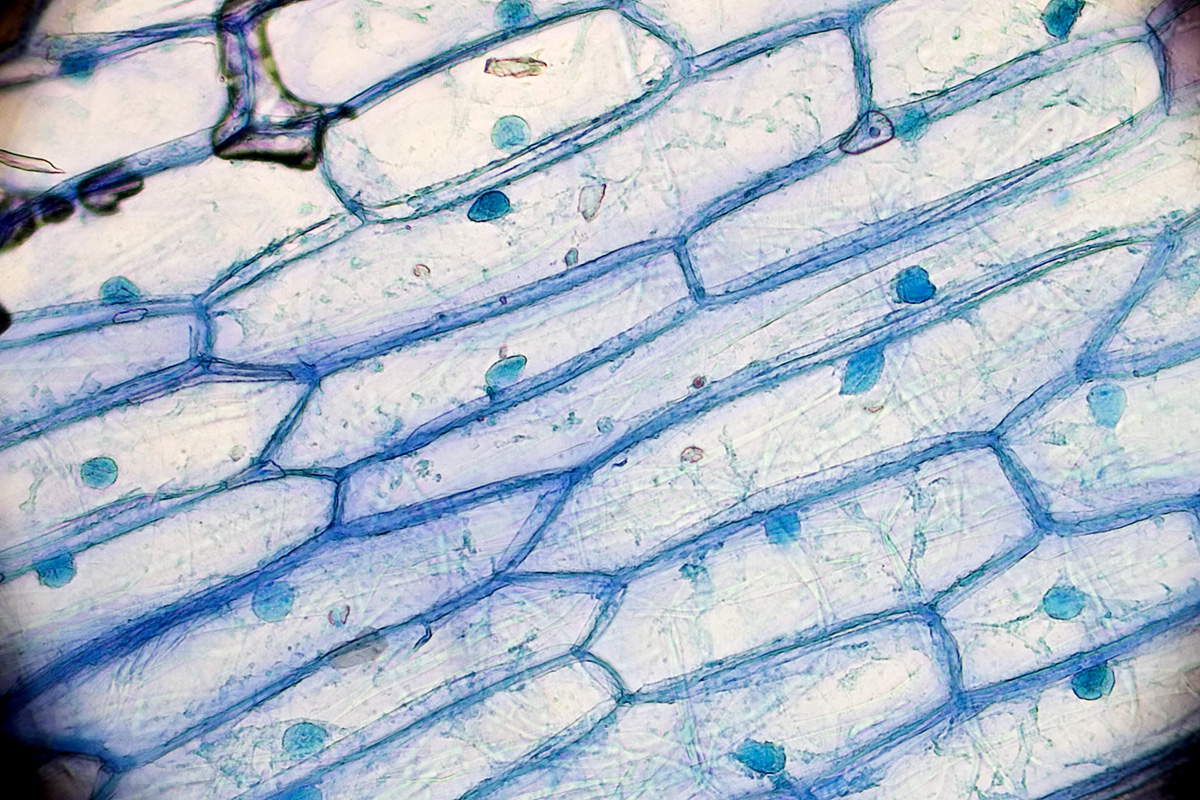 Onion cells and their nuclei. Image credit: Kaibara (Creative Commons)